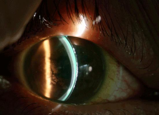 그림 1. 각막이 심하게 변형되어 어떠한 렌즈도 부착되지 않은 원추각막